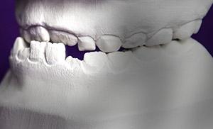 Zahnwolke
